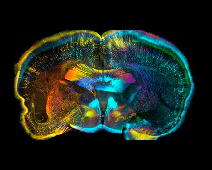 Cerebro de ratón - Wellcome Image Awards 2015