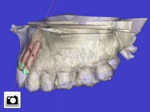 implante-dental-3d